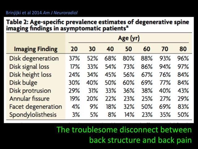 degenerative spine issues